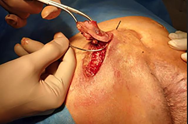 Cirugía Partes Blandas